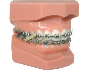 I had braces with rubber bands as an adult.  One time the girls talked me into wearing the pink, blue, and green rubber bands.